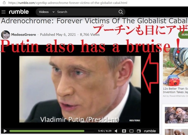Putin_also_have_a_bruise_from_drinking_Adrenocrome_20_3.jpg