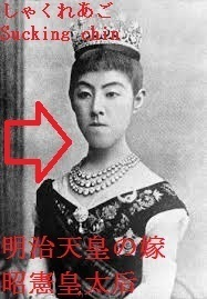 Sucking_chin_of_Meiji_emperor_s_wife_similar_with_Hapsburg_20.jpg